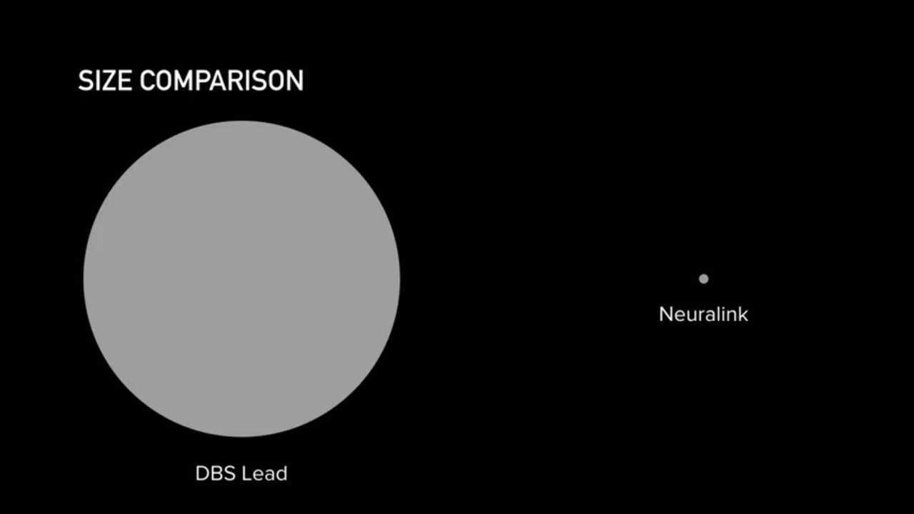 Elon Musk, Neuralink'i, Devrimci Bir Beyin İmplantı Sunuyor