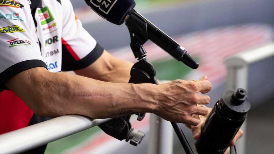 """MotoGP, Crutchlow: """"Con un braccio così molti non correrebbero"""""""