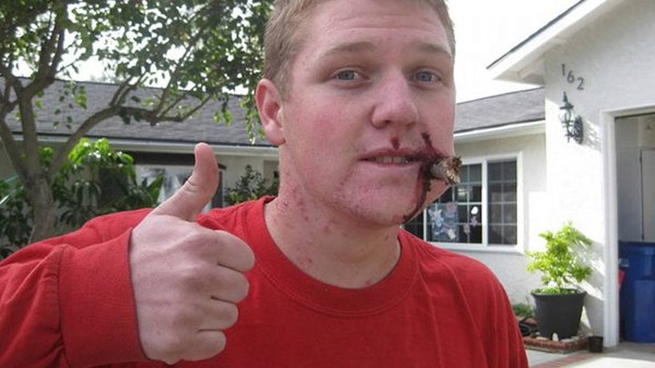 Impaled! the gnarliest bike injury you'll see all day